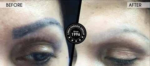 Eyebrow Microblading & Semi-Permanent Makeup | Makeup Tattoo Removal | Linda Paradis Tattoo Remoov |In Nuneaton | Coventry | Warwickshire | Leicestershire